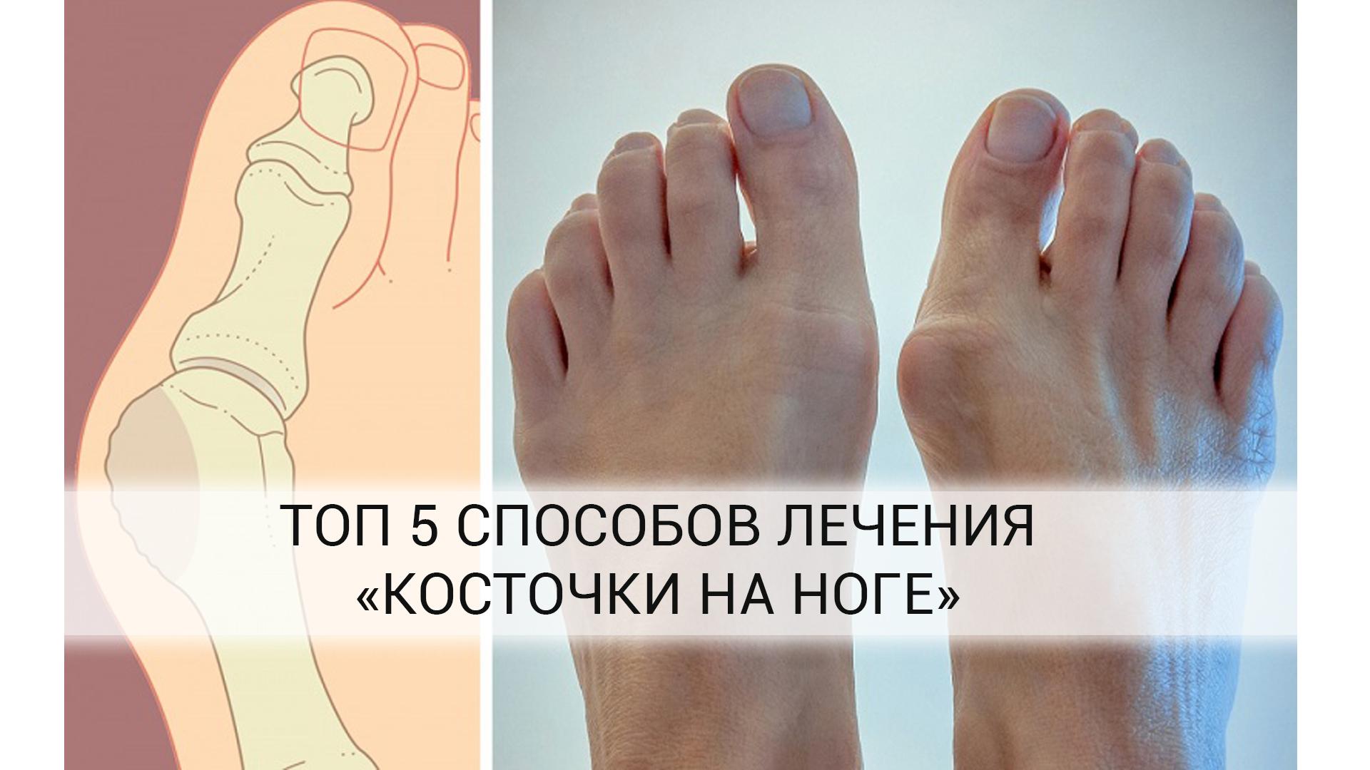 топ-5-способов-лечения-косточки-на-ноге