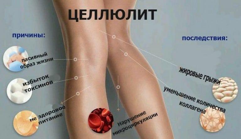 Упражнение от целлюлита, которое всего за 5 минут в день сделает твою попу упругой и красивой