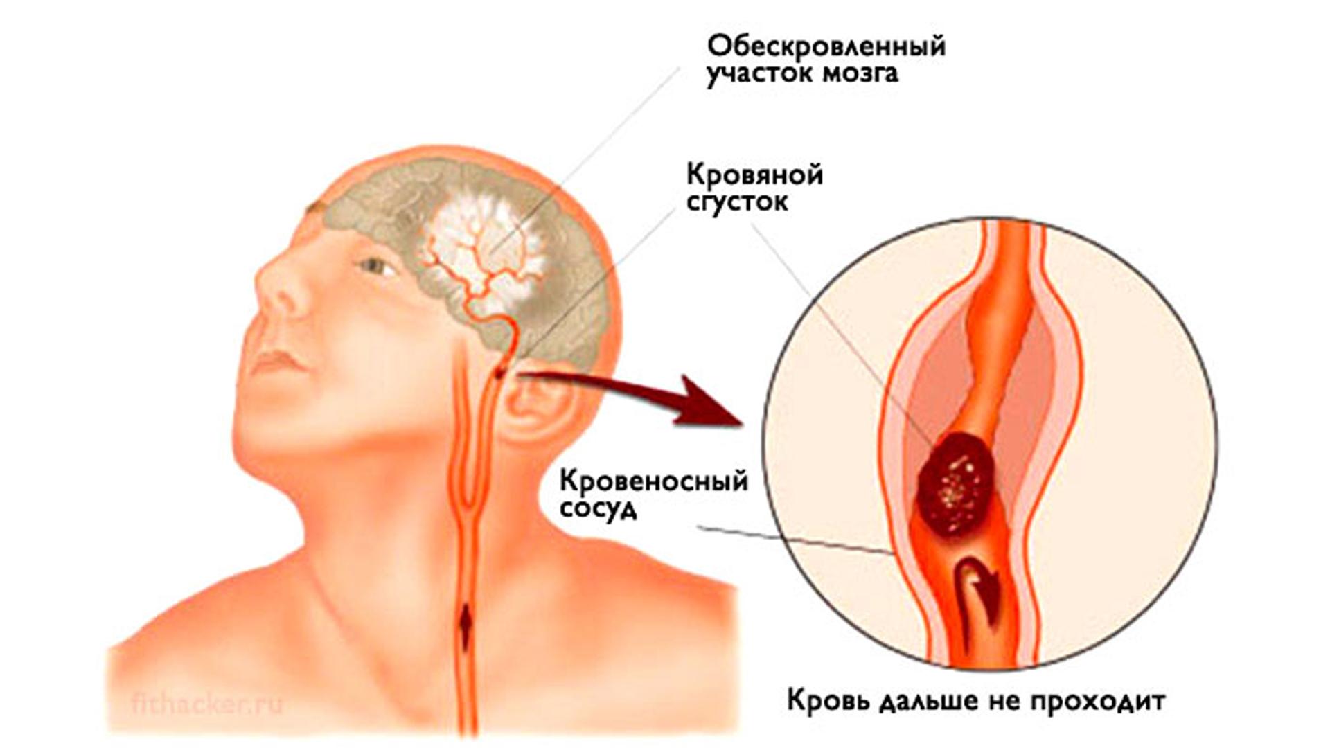 Распознать инсульт