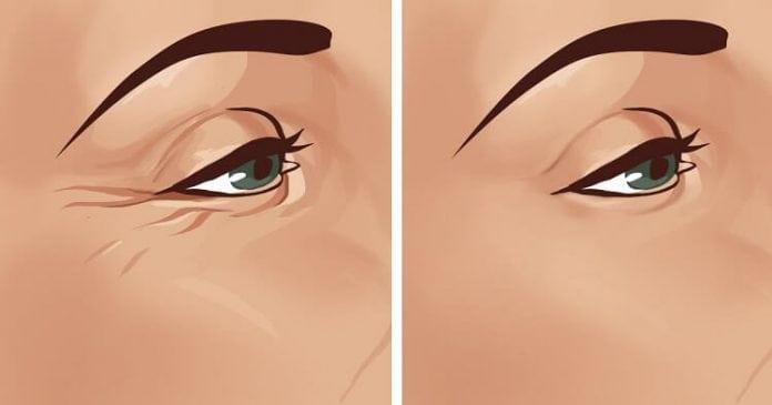 Как быстро избавиться от гусиных лапок вокруг глаз
