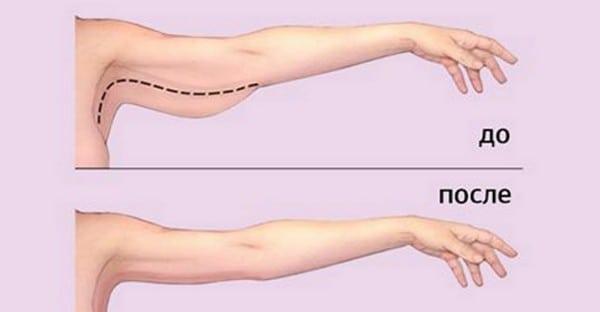 Убираем лишние сантиметры в области рук