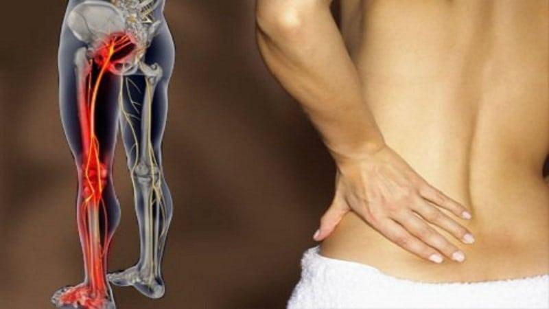 Эти 8 легких упражнений помогут избавиться от боли в пояснице